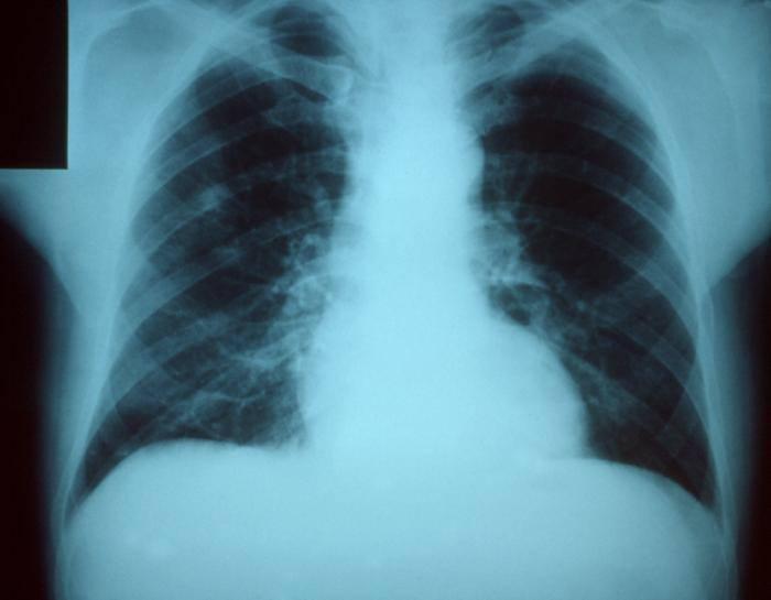 Pneumonia apare atunci cand avem conflicte emotionale legate de singuratate